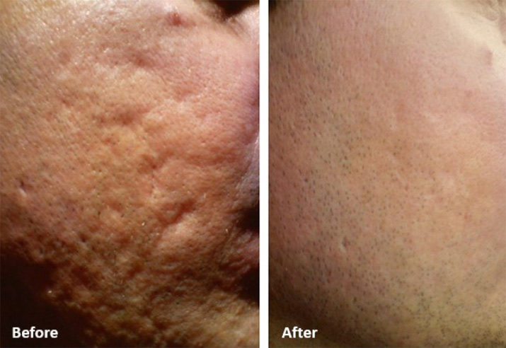 microneedling treatment before and after photo 1