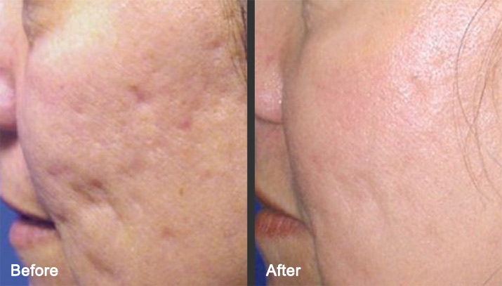 microneedling treatment before and after photo 2