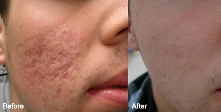 microneedling treatment before and after photo 3