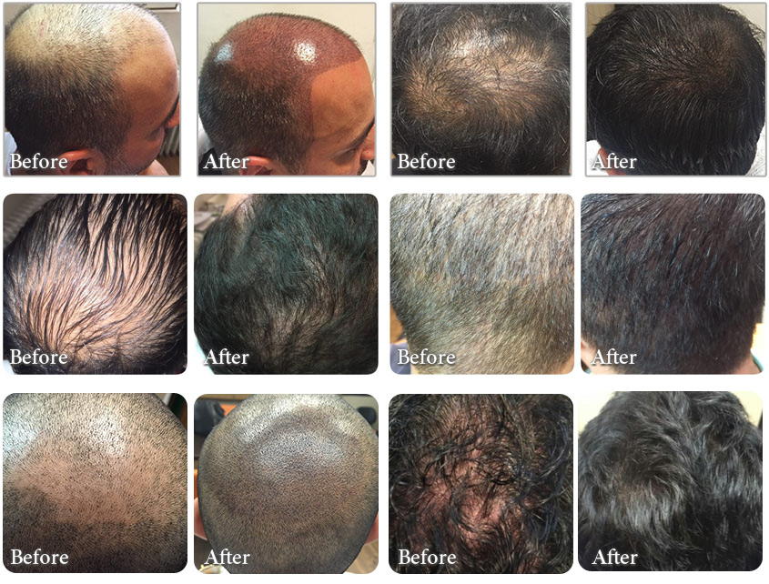 scalp pigmentation before after photos