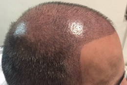 scalp pigmentation